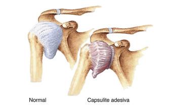 Capsulite Adesiva ou Ombro Congelado