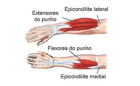 Epicondilite Lateral e Medial