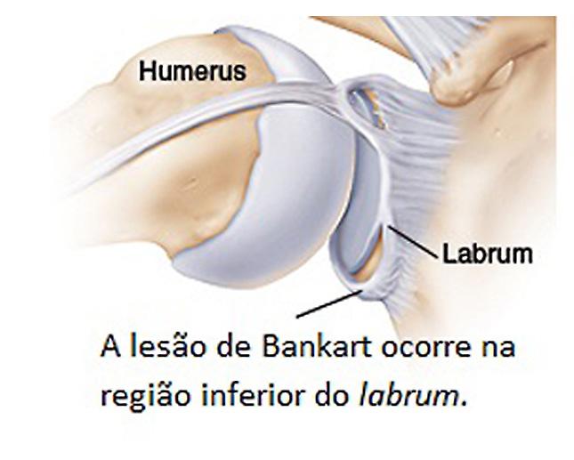 Lesão de Bankart