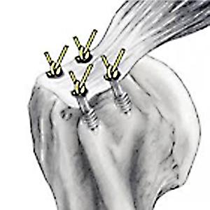 Colocação de Pinos